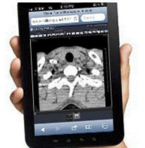 Web-based picture archiving and communication system / clinical Zero Millensys