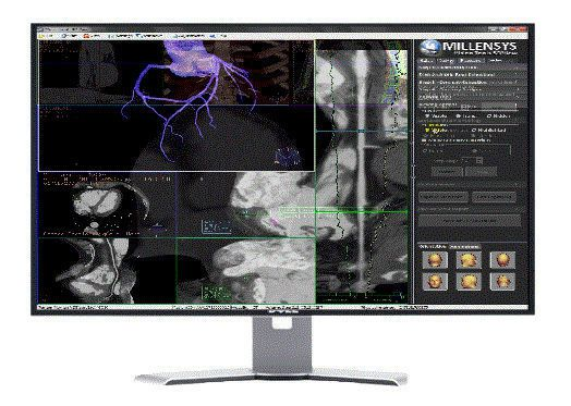 Diagnostic software / 3D viewing / medical imaging / medical Vision Tools 3DView Millensys