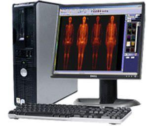 Medical computer workstation / nuclear medicine GView Millensys