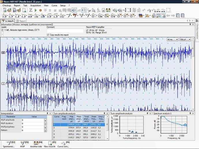 Analysis software / medical / EMG Neuro-MEP Mitsar Co Ltd