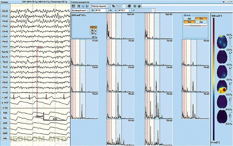 EEG software / medical Encephalan-EEGA Medicom MTD