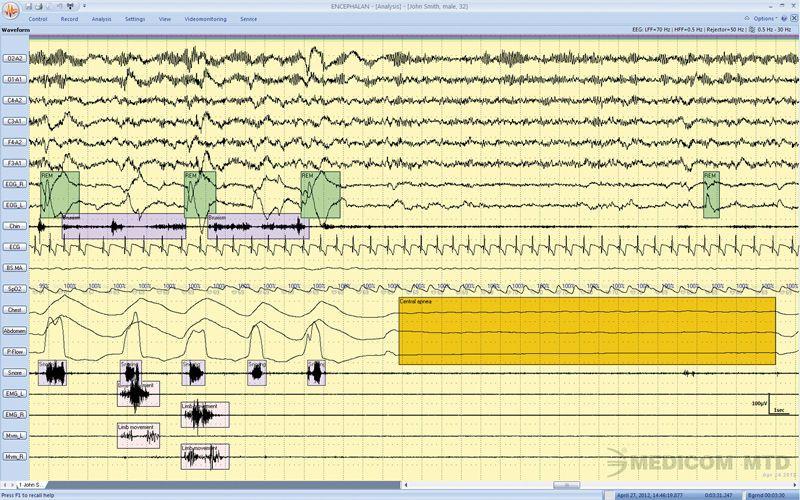Polysomnography software / medical Encephalan-PSG Medicom MTD