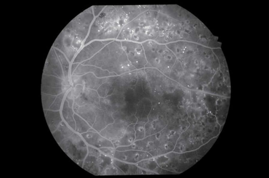 Non-mydriatic retinal camera (ophthalmic examination) / mydriatic retinal camera / eye fluorescein angiography VX-20 Kowa American Corporation