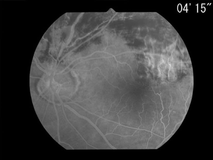 Mydriatic retinal camera (ophthalmic examination) / eye fluorescein angiography / hand-held Genesis-Df Kowa American Corporation