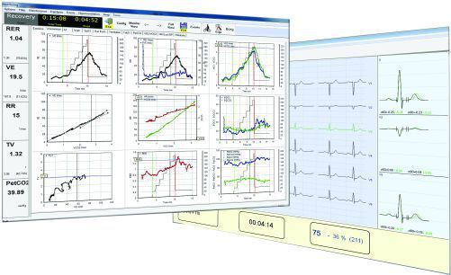 Cardio-respiratory stress test equipment Ergo100 MEC Medical Electronic Construction R&D