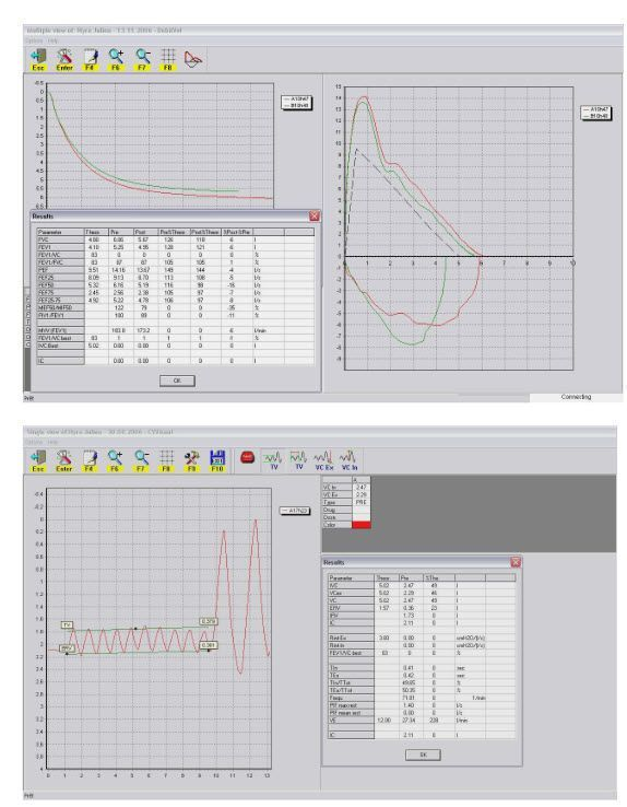 Hand-held spirometer / wireless Pocket-Spiro® USB/BT100 MEC Medical Electronic Construction R&D