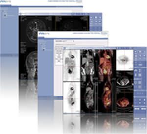Clinical trial management software IMAGYS KEOSYS