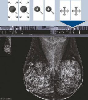 Diagnostic software / viewing / for mammography / medical INFINITT INFINITT NORTH AMERICA