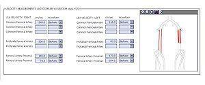 Diagnostic software / viewing / cardiology / medical INFINITT Non-invasive Vascular INFINITT NORTH AMERICA