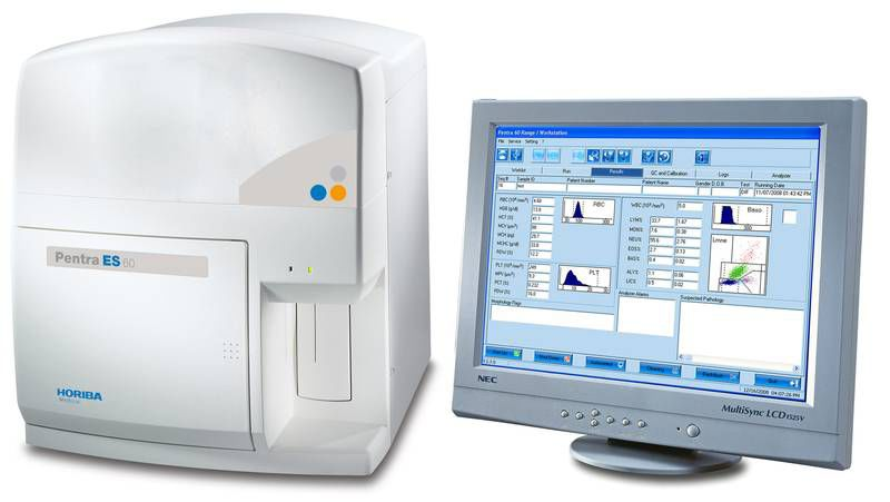 Automatic hematology analyzer / leukocyte distribution / 26-parameter / compact 60 tests/h | Pentra ES 60 HORIBA Medical