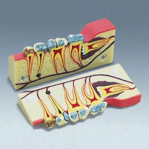 Denture anatomical model D-5 frasaco