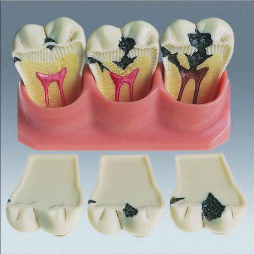 Tooth pathology anatomical model D-4 frasaco