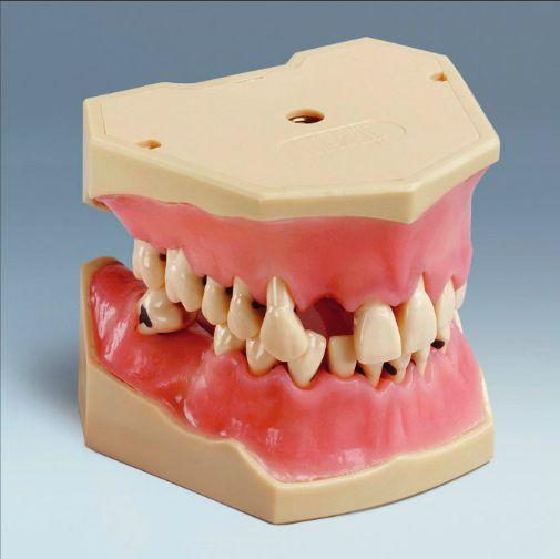 Denture anatomical model A-PB frasaco