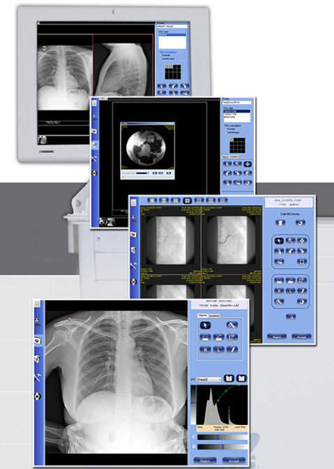 Viewing software / conditioning / acquisition / medical imaging DELUXE General Medical Italia
