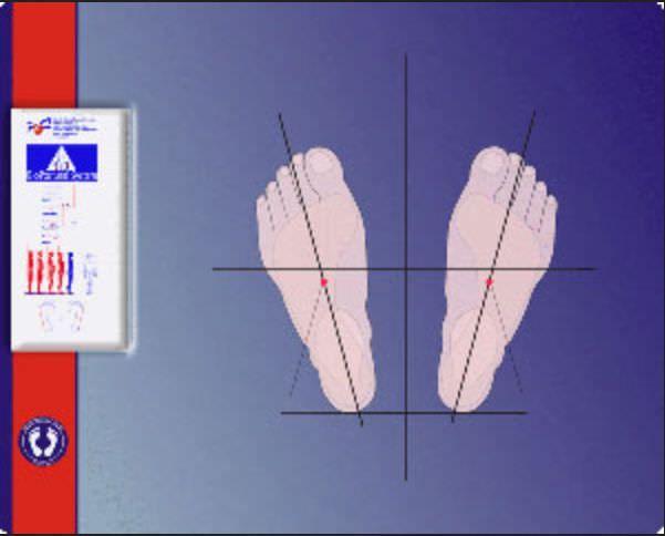 Posture functional capacity evaluation system GALBIATI