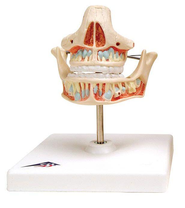 Denture anatomical model VE281 3B Scientific