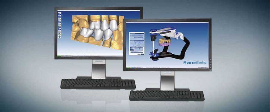 CAM software / CAD / for dental prosthesis design / medical Ceramill Mind Amann Girrbach AG