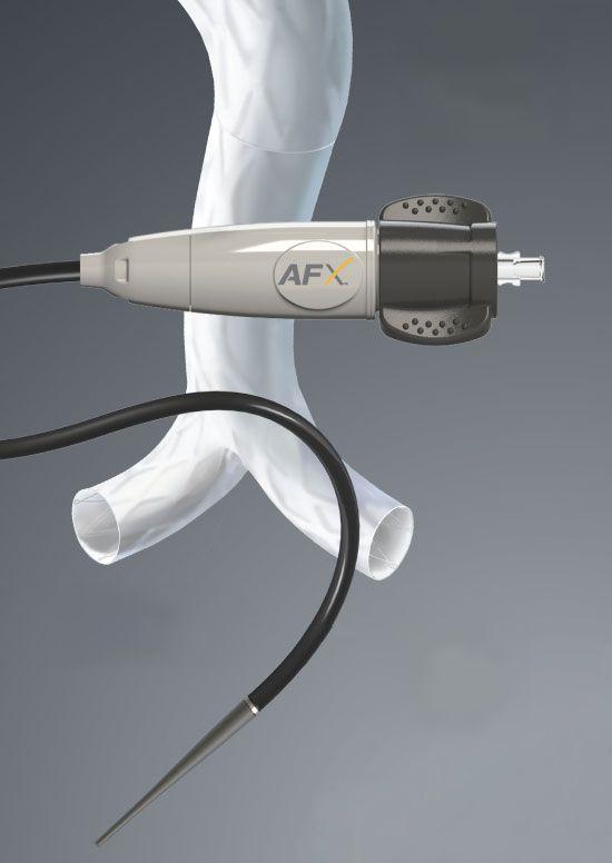 Abdominal stent graft AFX Endologix