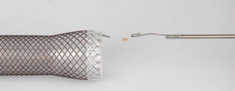 Stent extractor esophageal ELLA ELLA-CS