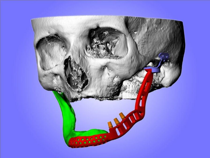 Cranial implant ELLA-CS