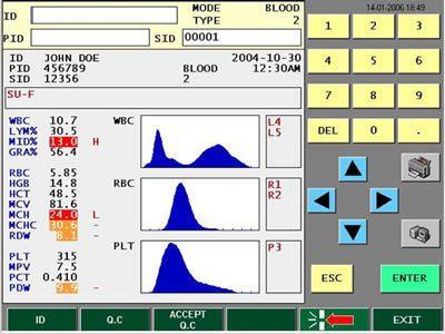 Automatic hematology analyzer / leukocyte distribution / 16-parameter 60 tests/h | Drew-3 Drew Scientific