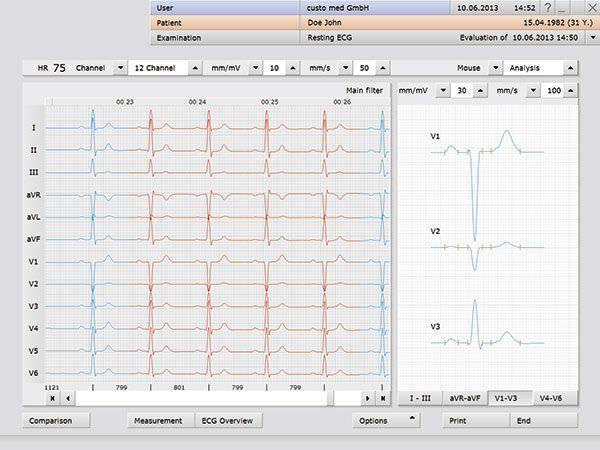 Management software / medical / electrocardiography Custo med