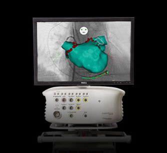 Cardiac mapping system Carto® 3 Biosense Webster