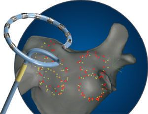 Mapping catheter / ablation / irrigated nMARQ™ Biosense Webster