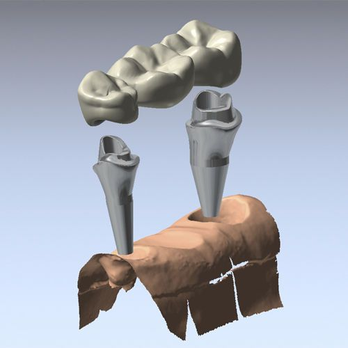 CAD software / CAM / for dental prosthesis design / medical DentCAD Delcam Plc