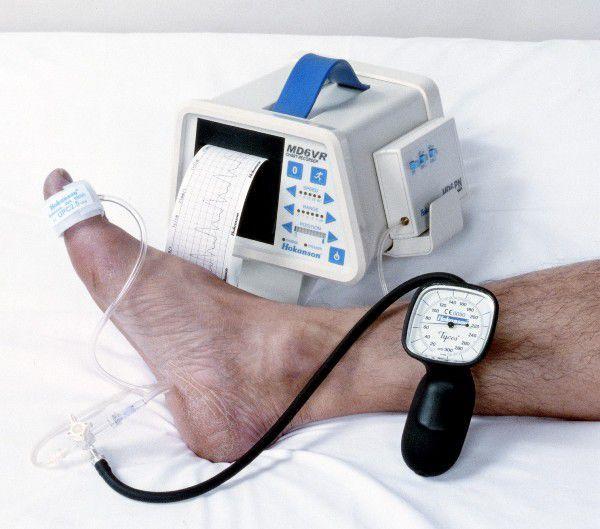 Photoplethysmograph examination kit TBI D. E. Hokanson