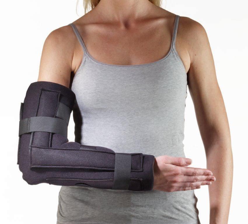 Elbow splint (orthopedic immobilization) 43-5071, 43-5072 Corflex