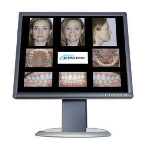 Orthodontic software / medical Carestream Dental