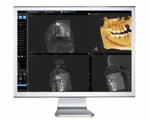 Dental imaging software / medical OMS Carestream Dental