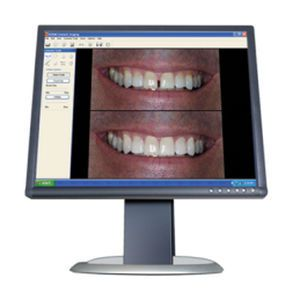 Software / simulation / viewing / dental / dentist office Carestream Dental