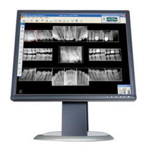 Dental imaging software / medical Carestream Dental
