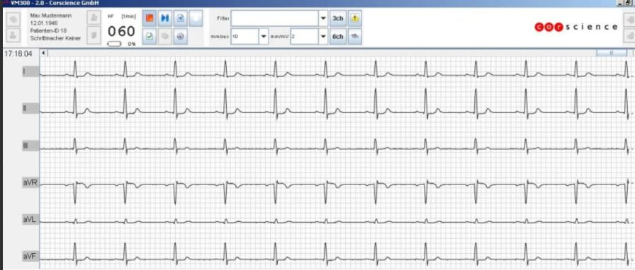 Medical software / electrocardiography VM300 Corscience