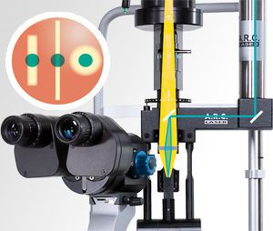 Ophthalmic laser / for trabeculoplasty / solid-state / tabletop SLT TRABECULAS A.R.C. Laser