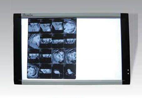 2-section X-ray film viewer LEDVIEW-740 Bowin Medical