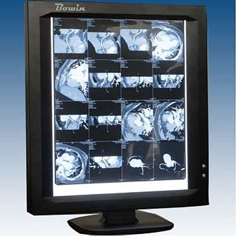 1-section X-ray film viewer LEDVIEW-360 Bowin Medical