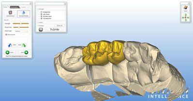 CAM software / for dental prosthesis design / CAD / medical ORIGIN HD B&D Dental Technologies
