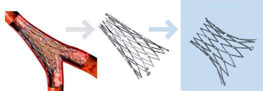 Coronary stent / drug eluting / birfurcated Axxess™ Biosensors BV