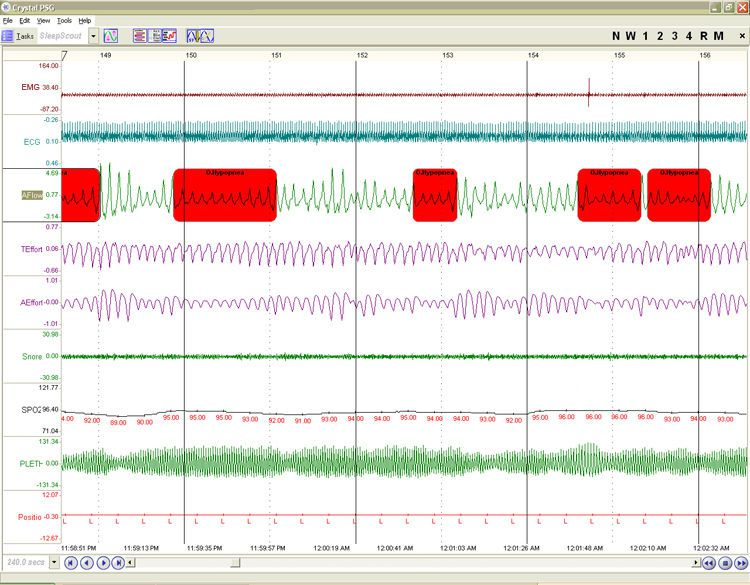 Polysomnograph with EEG SleepScout™ CleveMed