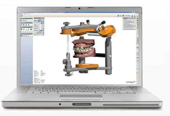 Planning software / diagnostic / simulation / medical OrthoAnalyzer™ 3shape