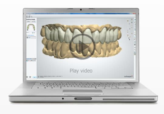 Dental prosthesis design software / CAD / dental laboratory Smile Composer™ 3shape