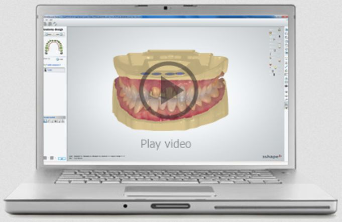CAD software / for dental prosthesis design / dental laboratory Model Builder™ 3shape