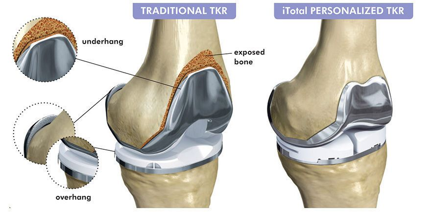 Three-compartment knee prosthesis / traditional / cemented iTotal® G2 ConforMIS