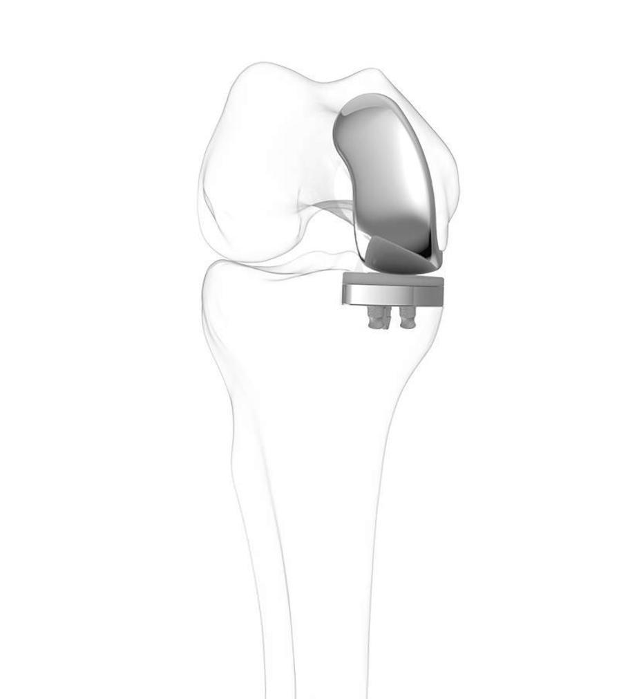 Unicompartmental knee prosthesis / traditional / cemented iUni® G2 ConforMIS