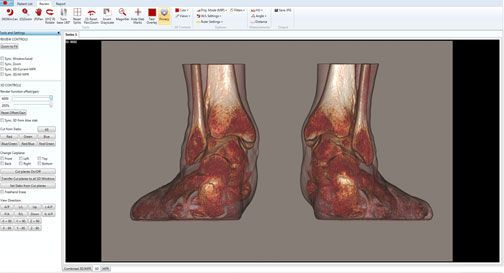 Planning software / 3D viewing / diagnostic / medical imaging CUBEVUE CurveBeam