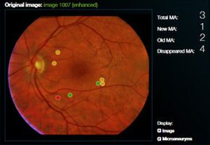 Viewing software / diagnostic / medical / ophthalmology RetmarkerDR critical-health