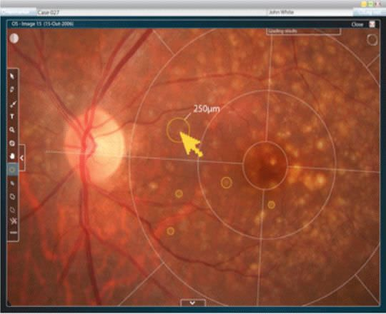 Viewing software / diagnostic / medical / ophthalmology RetmarkerAMD critical-health